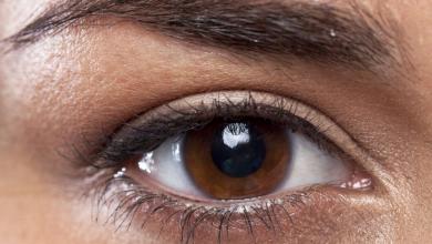 Göz Altı Morlukları İçin Hangi Doktora Gidilir?