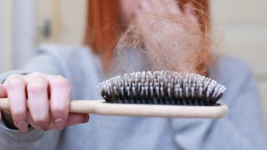 Saç Dökülmesini Doğal Yöntemler ile Önlemek Mümkün!